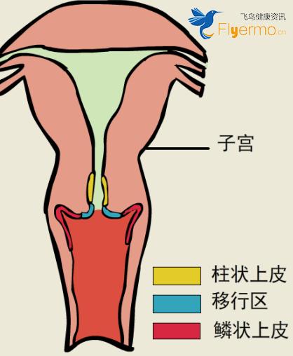 宫颈糜烂是正常的生理现象,需要注意哪些?