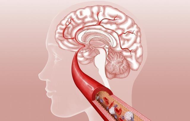 老年人脑血栓形成的预防和护理
