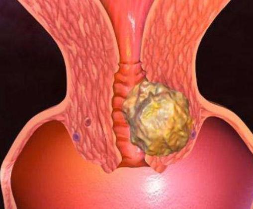 哪些女性容易患宫颈疾病?