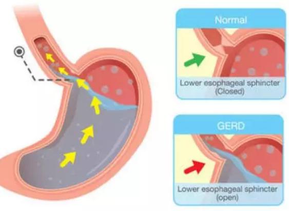 正确的诊断和治疗,对胃食管反流病的痊愈十分