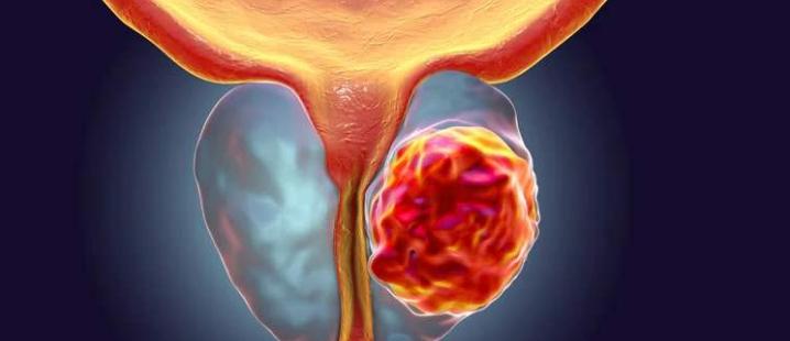 前列腺伴钙化是怎么回事?严重吗?
