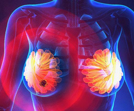 怎么判断轻、中、重度乳腺增生?