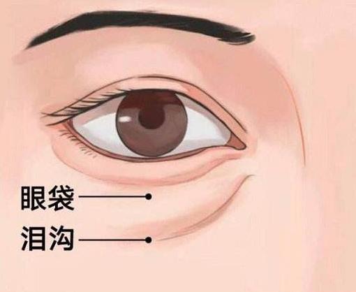 眼袋是衰老的标志,2招学会消除眼袋