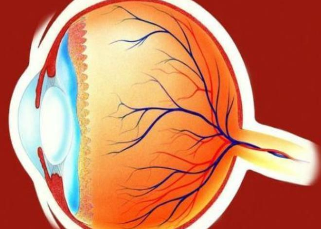 糖尿病患者发现眼部有问题,可以做哪些检查?